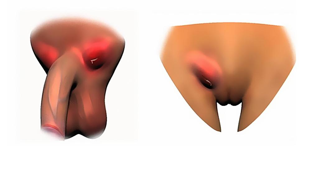 хламидийная гранулема
