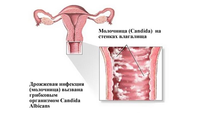 Болит ли живот при молочнице у женщин - Все про молочницу