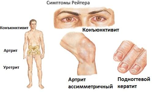 рейтера болезни,ь