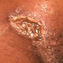 Сыпь на ноге венерическая thumbnail