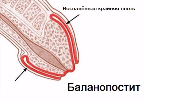 головка
