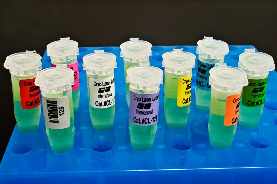 анализы ПЦР при негонококковом уретрите
