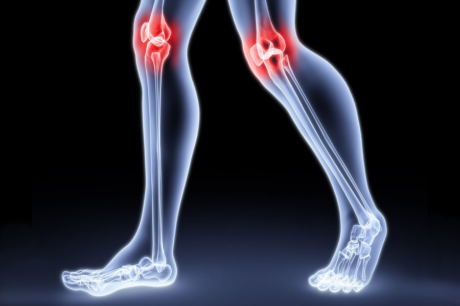 артрит при микоплазмозе