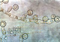 дрожжеподобные грибы в мазке
