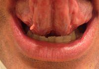 кондиломы в полости рта