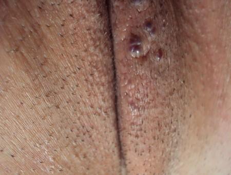 гнойнички на половых губах