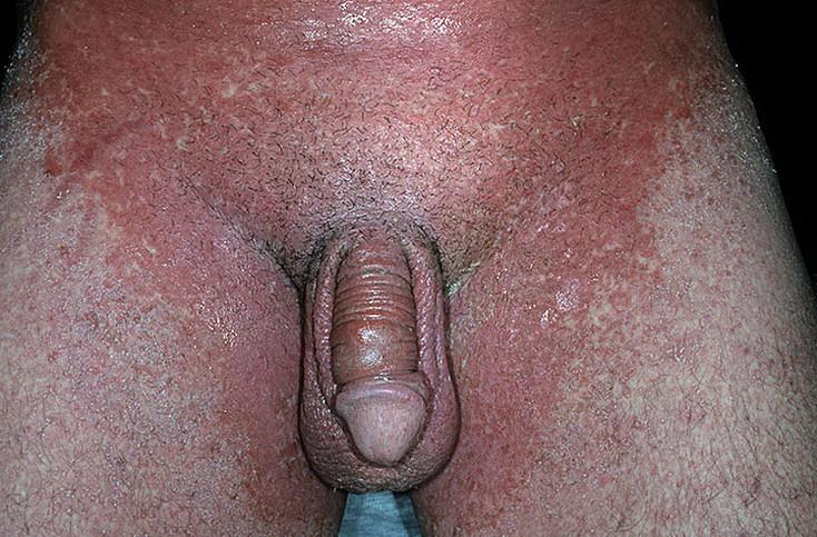 аллергия на половых органах