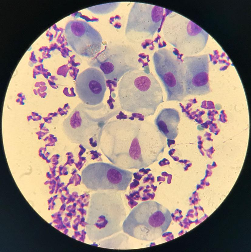микроскопия мазка отпечатка