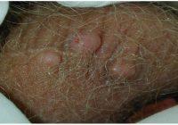 бородавки на яичках у мужчин